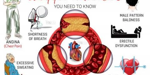 10 signes et symptômes de artères obstruées possibles que vous devez savoir
