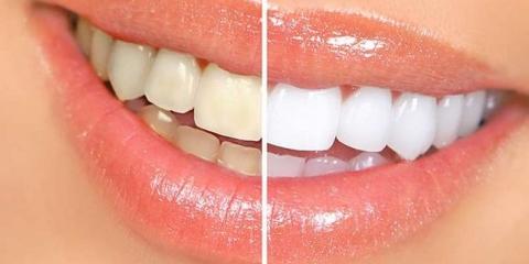 16 façons naturelles de bricolage pour blanchir les dents