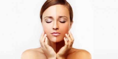20 remèdes maison de bricolage pour blanchiment de la peau