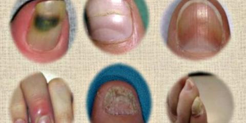 Les problèmes et les remèdes à ongles générales