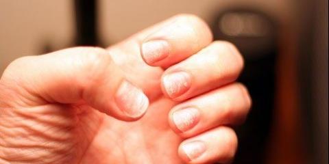 Accueil recours pour les ongles cassants / facilement brisés