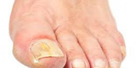 Quels sont les remèdes maison pour traiter champignon de l'ongle?