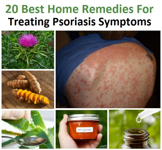 herbal remedies for scalp psoriasis
