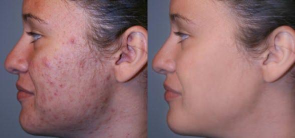 Populaire vous des cicatrices d'acné avec des remèdes maison JD98