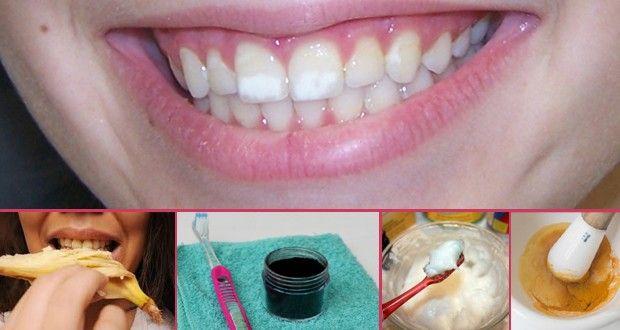 comment enlever tache sur les dents