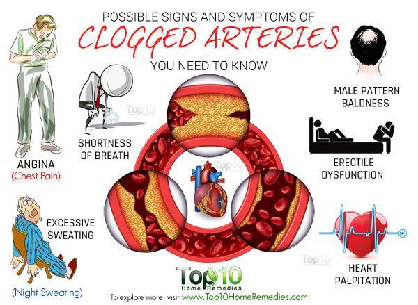 10 Signes et symptômes d'artères obstruées possible, vous..