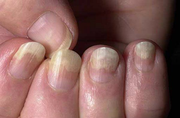 Accueil recours pour koilonychias / ongles cuillère