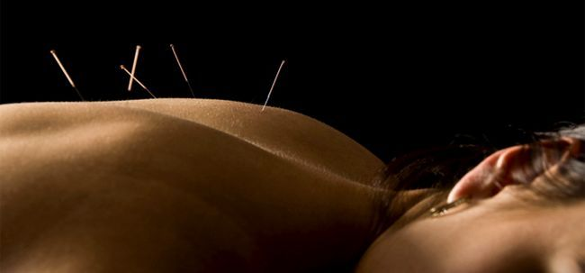 Comment fonctionne Acupunture Help Cure Back Pain?