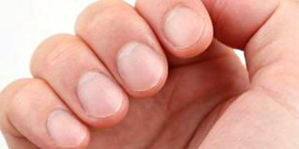 Hippocratisme digital est une maladie établi des ongles qui est également connu comme Hippocrate en raison de sa collection de différentes maladies.