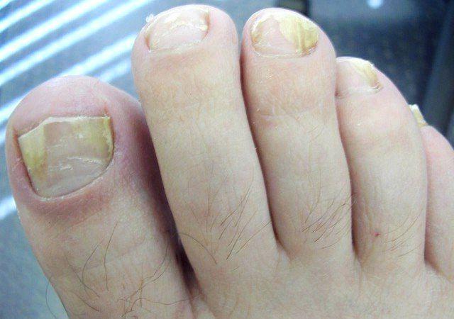 17 rem des maison pour mycose des ongles rem des la maison natural cures base de plantes - Coupe des ongles de pieds ...