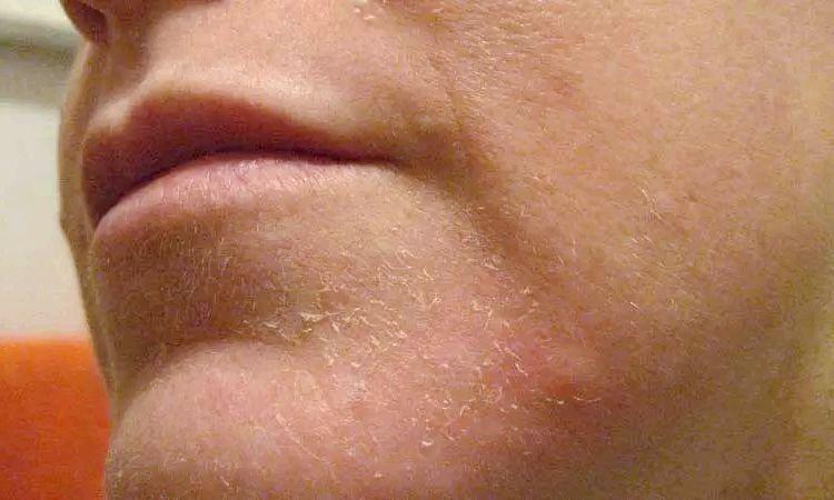 Чувствительная кожа шелушение