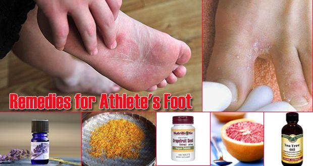 maladie la goutte au pied